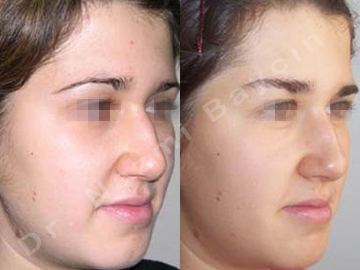 brow lift before after picture