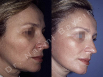 face lift before after picture