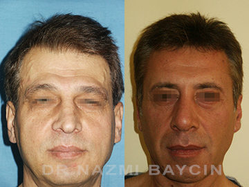 face transformation before after picture