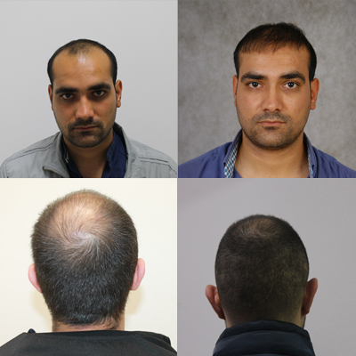 hair transplantation before after pictures