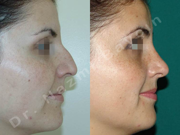 rhinoplasty before after picture