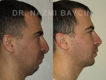 chin augmentation before after picture