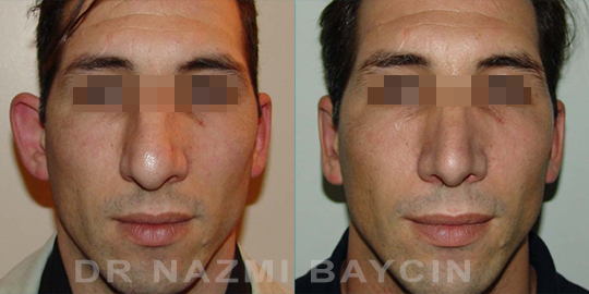 ear correction before after pictures