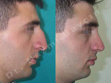 nose surgery before after picture