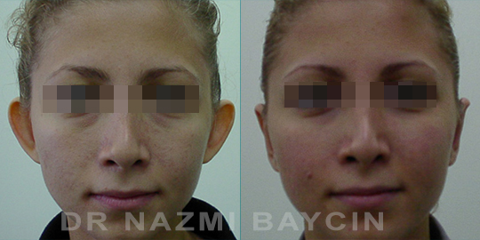 otoplasty before after pictures