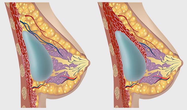 breast augmentation techniques