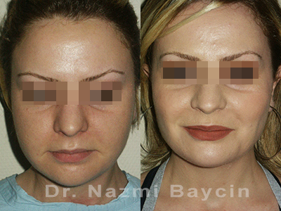 buccal fat removal before and after picture