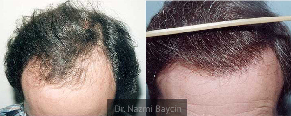 natural hairline after hair transplant